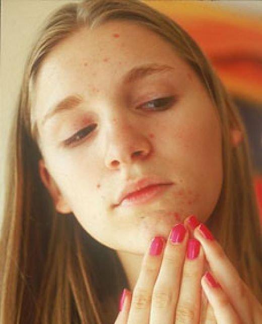 причины возникновения черных точек на лице