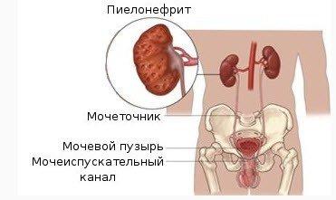пиелонефрит как лечить
