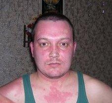 аллергия на алкоголь симптомы фото на теле