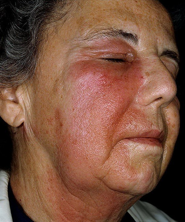 как проявляется аллергия на теле