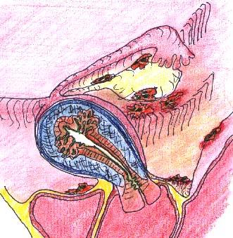 Болит левая рука от плеча до кисти причины и лечение