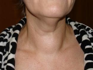 Лечение красных щек у мужчин