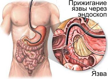 исследование содержимого желудка: