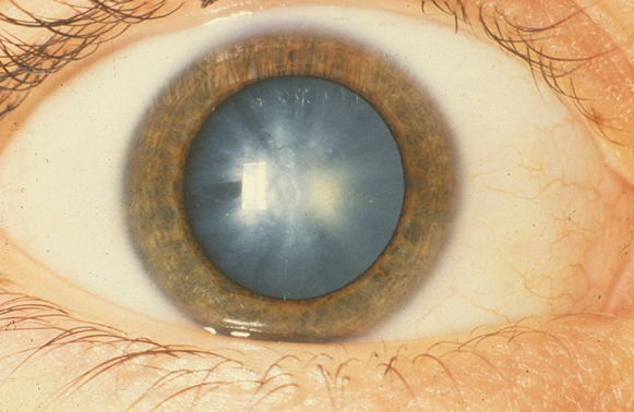Катаракта глаз симптомы лечение