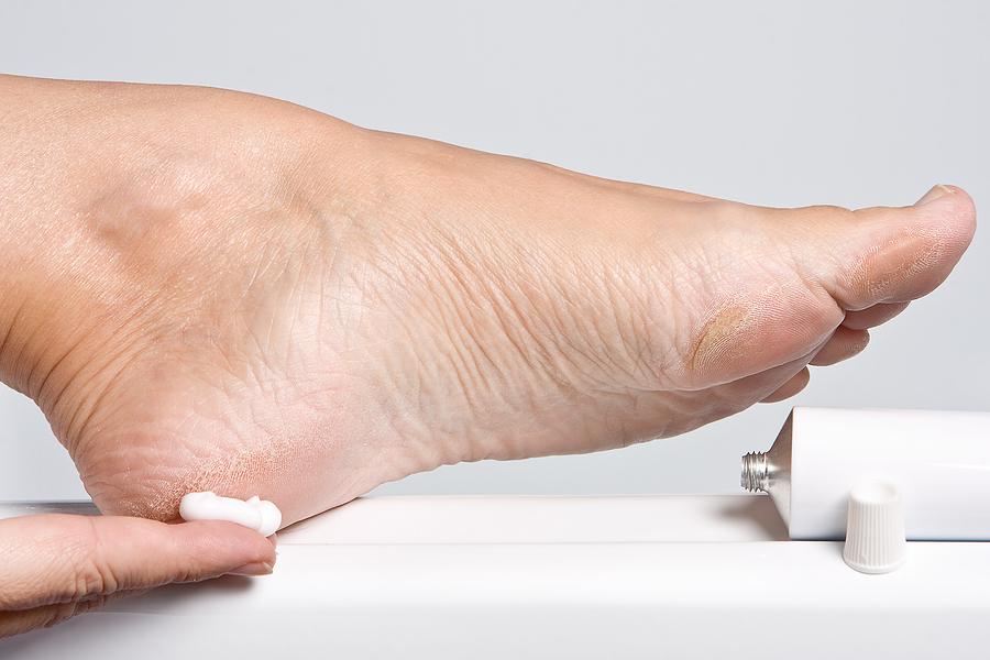 натоптыши на ступнях лечение быстрое избавление отзывы
