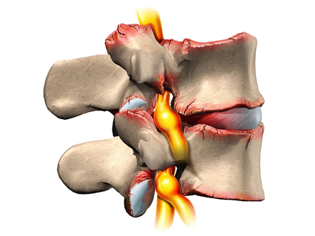 остеохондроз позвоночника грыжа лечение