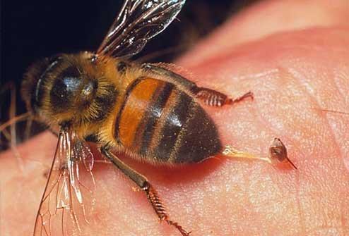 Как защититься от укуса насекомых