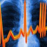 Синдром ранней реполяризации желудочков лечение