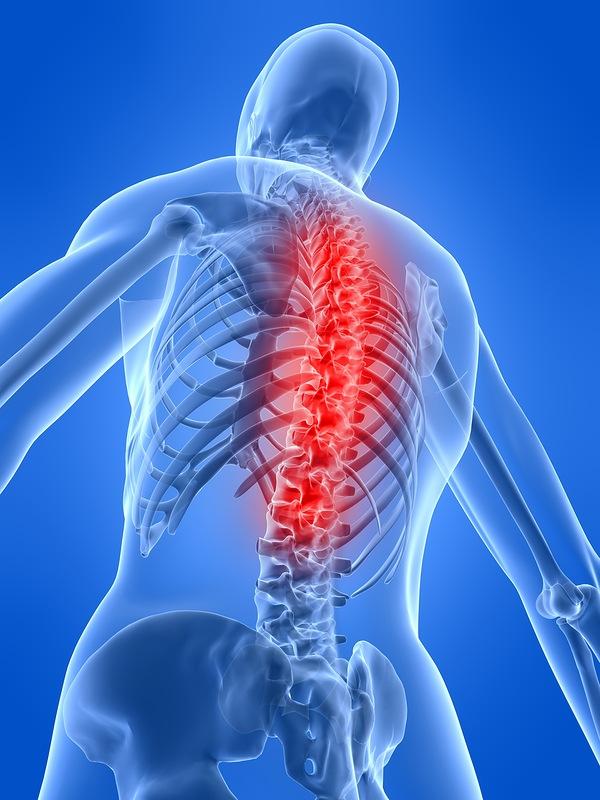 боли в верхней части спины причины