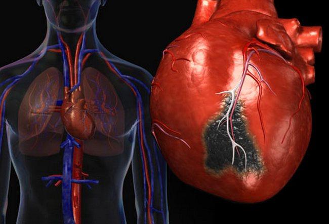 Атипичные формы инфаркта миокарда » Скальпель - медицинский ...