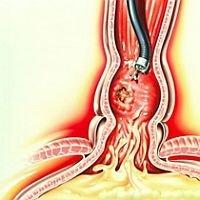 Цдс артерий и вен нижних конечностей