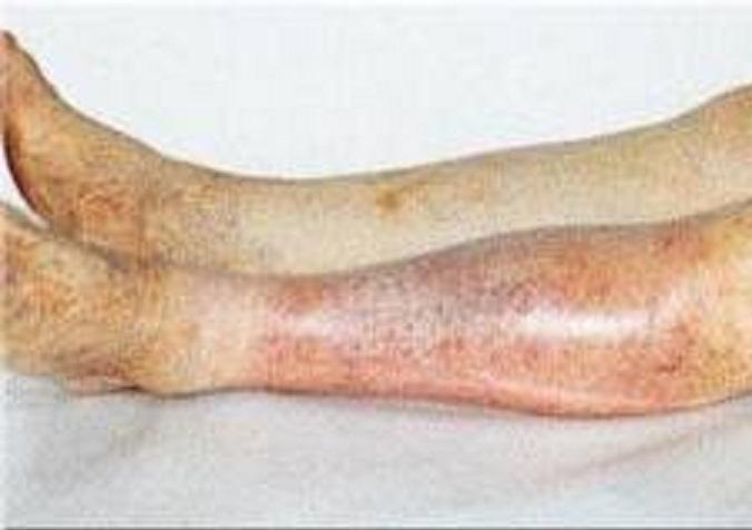 Атеросклероз нижней конечности как эффективно лечить показать
