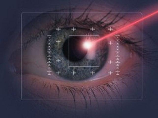 Цены на лазерную коррекцию зрения екатеринбург