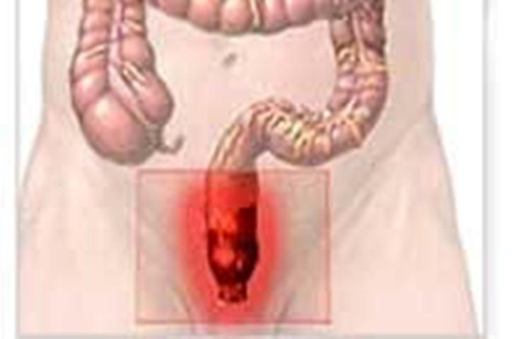 zud-okolo-analnogo