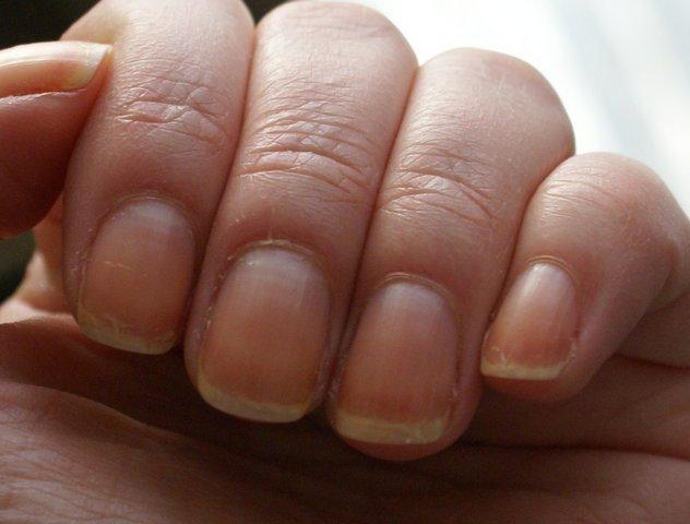 Ногти на руках волнистые о какой болезни