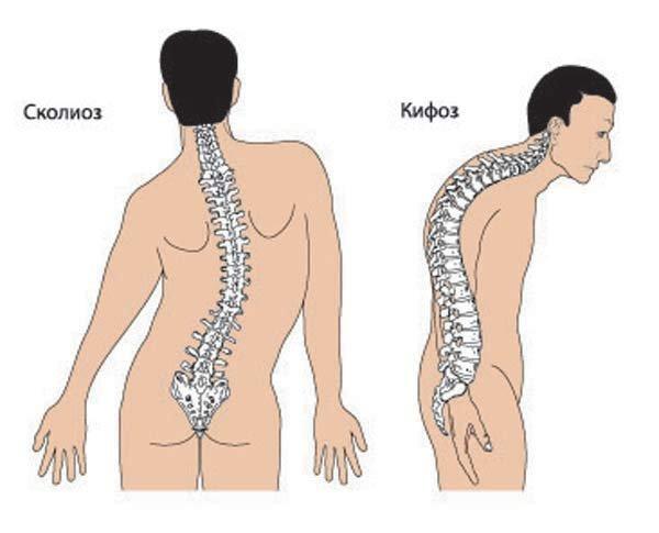 Процедуры при остеохондрозе позвоночника