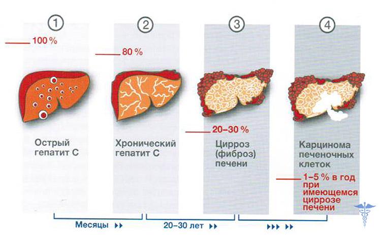 Rw вич гепатиты в и с анализы
