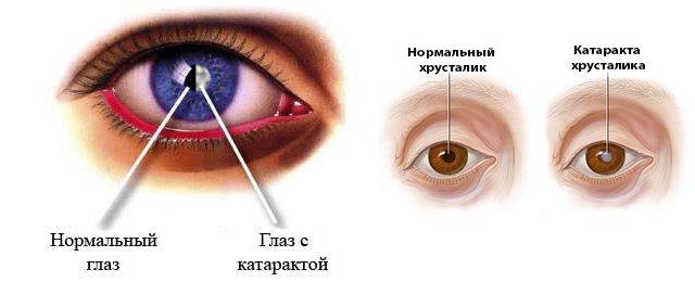 Катаракта глаза — симптомы, диагностика и лечение