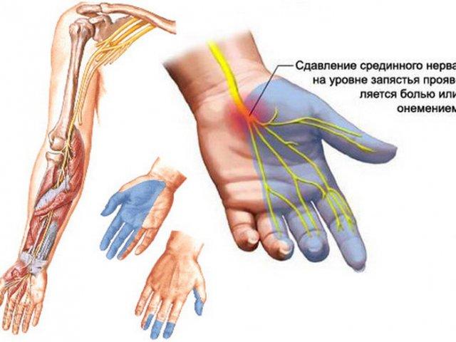Гимнастика при онемении рук ночью