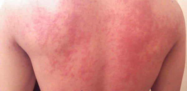 Сыпь на суставах кисти артроз сустава лечение