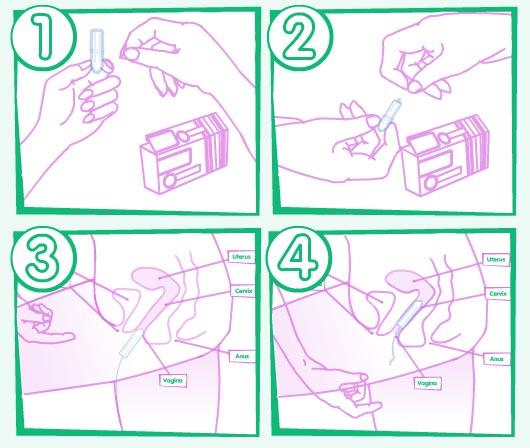 метронидазол в свечах инструкция по применению - фото 5