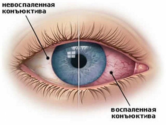 контактные линзы вред и польза
