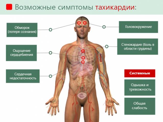 Тахикардия — причины, симптомы, лекарства для лечения