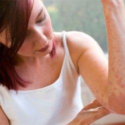Лечение сыпи на теле