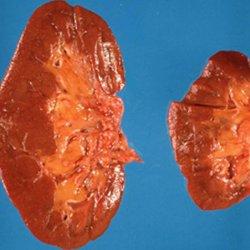 Туберкулез почек у детей лечение