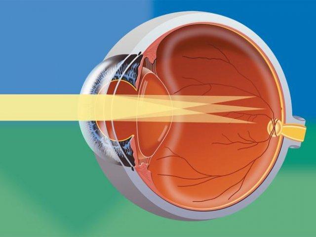 Тренажер глаз астигматизм