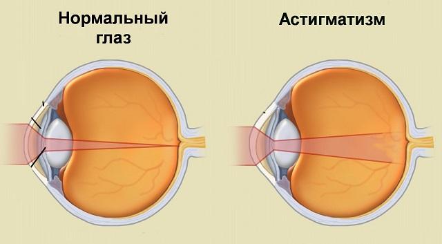 Капли от повышенного глазного давления