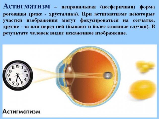 Глаз и зрение тест по теме
