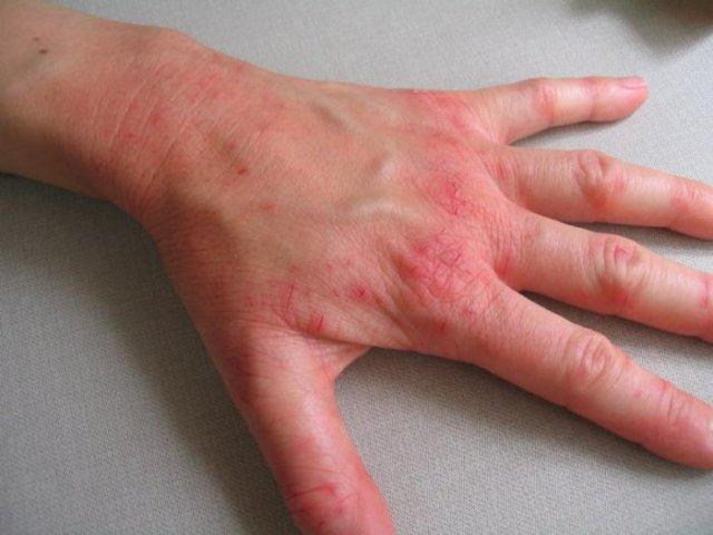 Лечение псориаза ягодами можжевельника