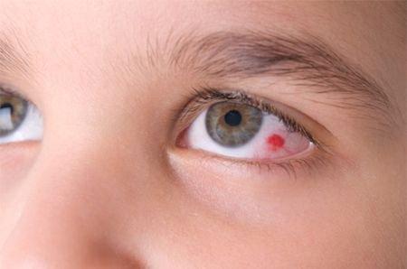 Лопнувший сосудик в глазу у ребенка как лечить
