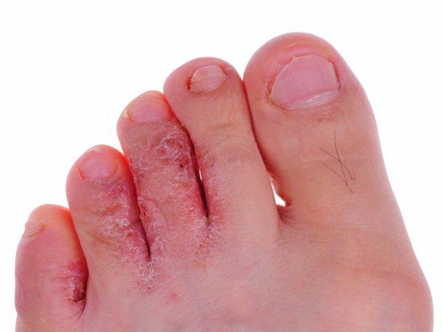 противогрибковые препараты для ногтей таблетки