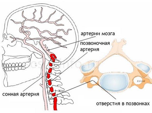 Гипоплазия позвоночной артерии — причины, симптомы и лечение