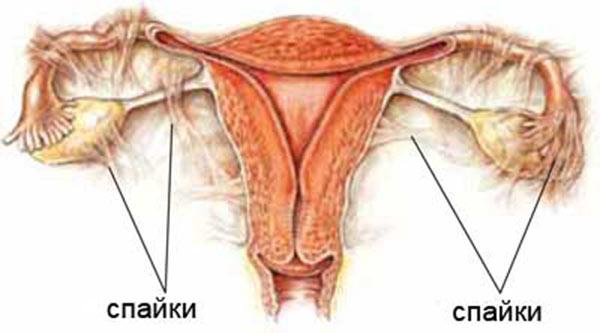 Беременность после удаления спаек