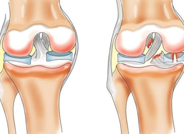 Защемление мениска коленного сустава лечение жим узким дискомфорт в суставах