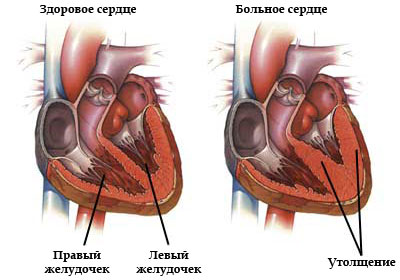 Гипертрофия желудочков сердца