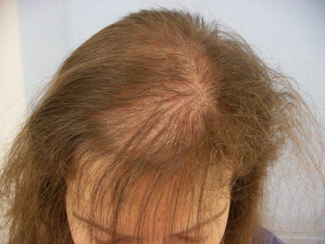 Как выглядит волос с луковицей фото