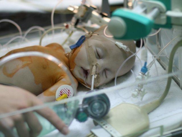 Бронхолегочная дисплазия новорожденных — причины, последствия
