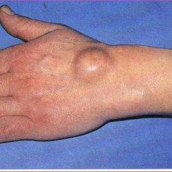 лечение народными средствами гигромы лучезапястного сустава