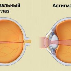 Определение остроты зрения без коррекции и с коррекцией