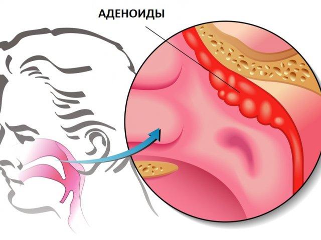 Как победить аденоиды без операции