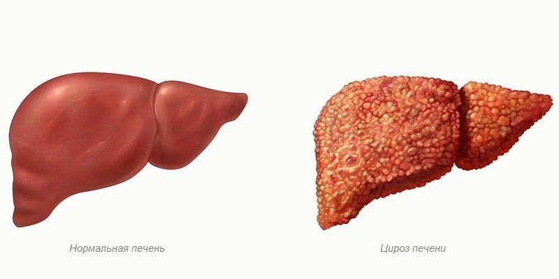 Где в туле можно сдать анализ на гепатит