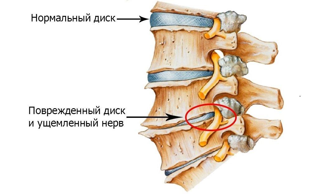 Остеохондроз шейного отдела грыжа межпозвоночного диска