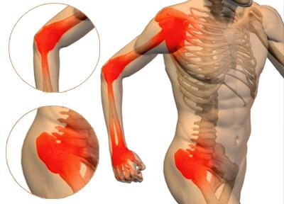 Оссалгия (боль в костях) — причины, симптомы и лечение