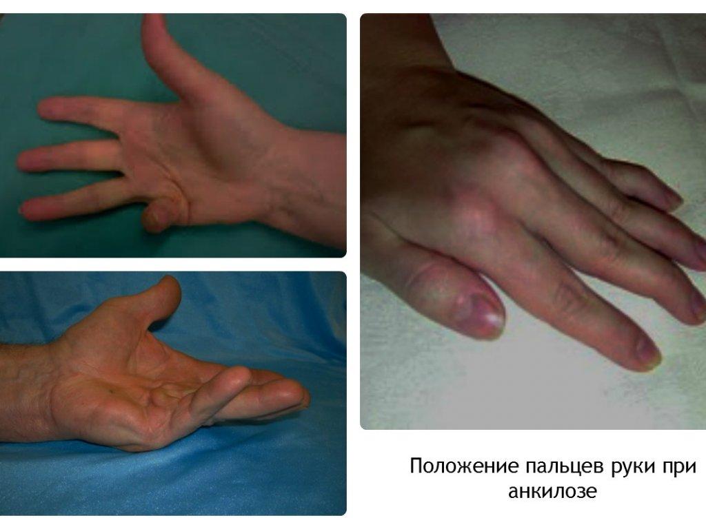 Анкилозы контрактуры суставов акулий гель или мазь для суставов цена
