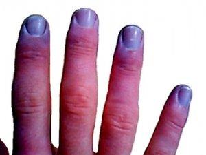 Болезни сосудов — причины, симптомы, диагностика и лечение