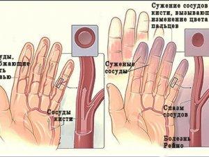 Методылечения ангионевроза